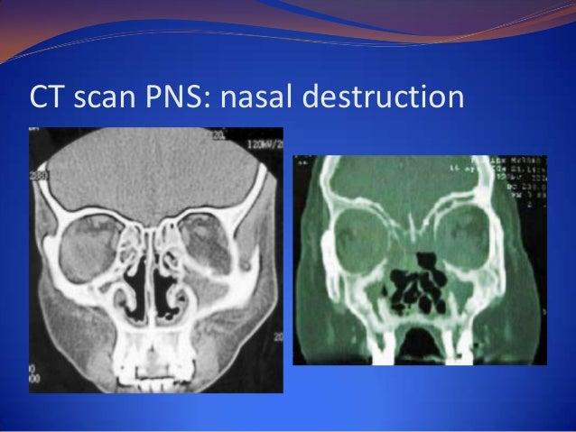 Nasal  Granulomas13