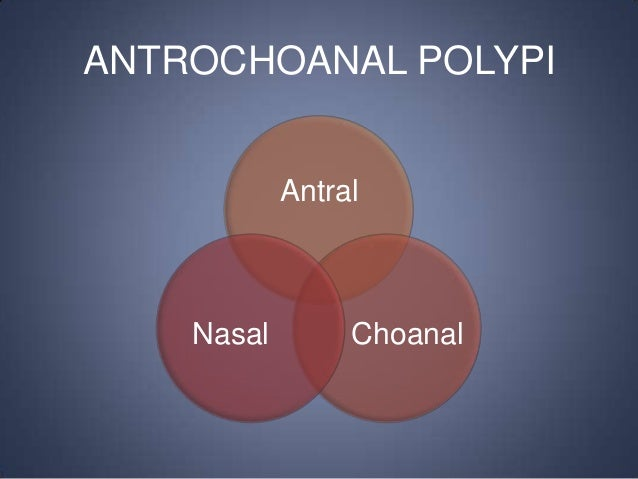 ANTROCHOANAL POLYPI Antral  Nasal  Choanal