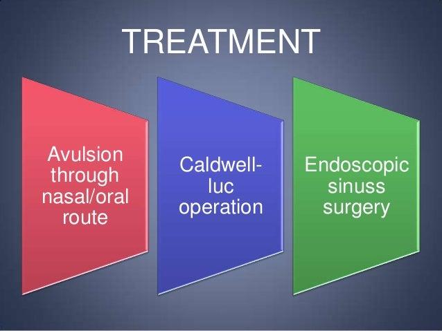TREATMENT  Avulsion through nasal/oral route  Caldwellluc operation  Endoscopic sinuss surgery