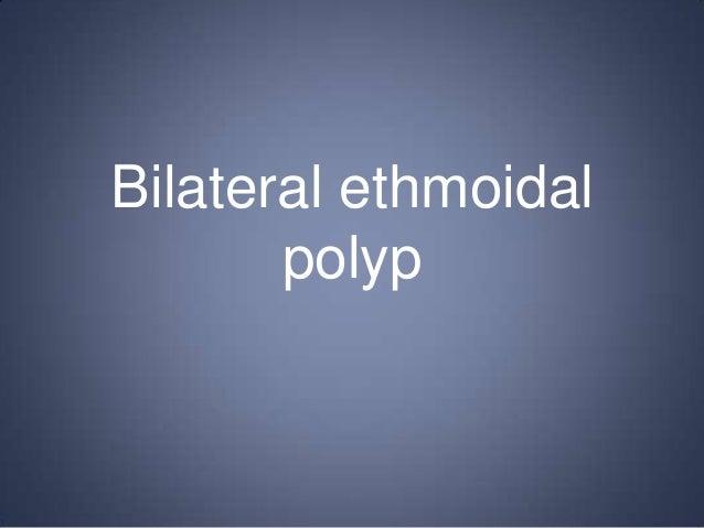 Bilateral ethmoidal polyp