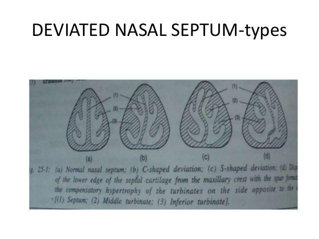 Nasal Septum Septoplasty