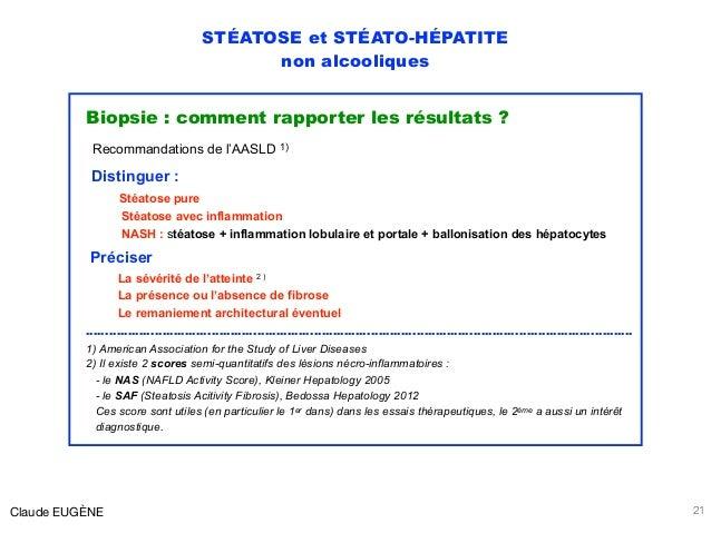 STÉATOSE et STÉATO-HÉPATITE non alcooliques Biopsie : comment rapporter les résultats ? Recommandations de l'AASLD 1) Dist...