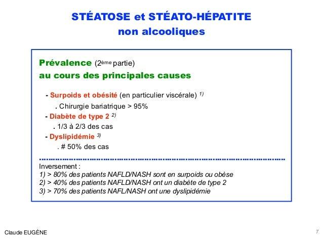 STÉATOSE et STÉATO-HÉPATITE non alcooliques Prévalence (2ème partie) au cours des principales causes - Surpoids et obésit...