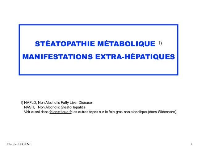 STÉATOPATHIE MÉTABOLIQUE 1) MANIFESTATIONS EXTRA-HÉPATIQUES 1) NAFLD, Non Alcoholic Fatty Liver Disease NASH, Non Alcohol...