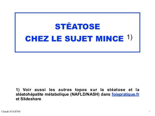 STÉATOSE CHEZ LE SUJET MINCE 1) 1) Voir aussi les autres topos sur la stéatose et la stéatohépatite métabolique (NAFLD/NAS...