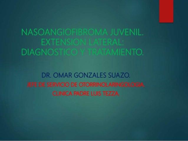 NASOANGIOFIBROMA JUVENIL. EXTENSION LATERAL: DIAGNOSTICO Y TRATAMIENTO. DR. OMAR GONZALES SUAZO. JEFE DE SERVICIO DE OTORR...