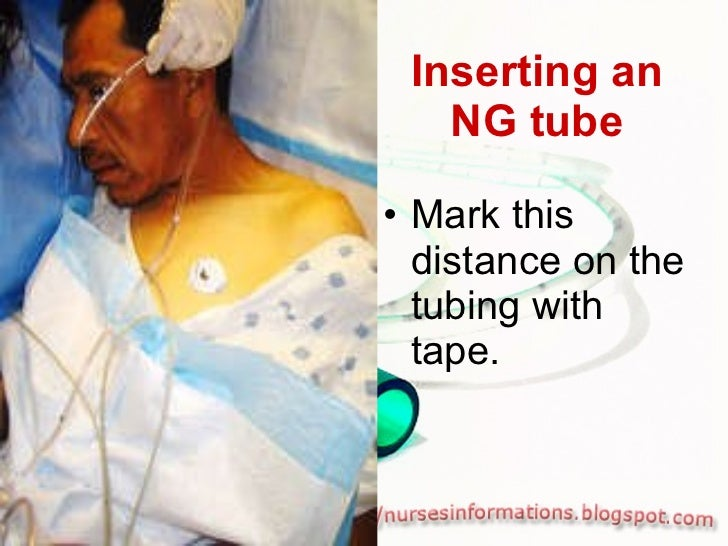 Inserting an NG tube <ul><li>Mark this distance on the tubing with tape. </li></ul>
