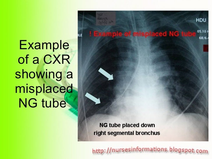 Example of a CXR showing a misplaced NG tube