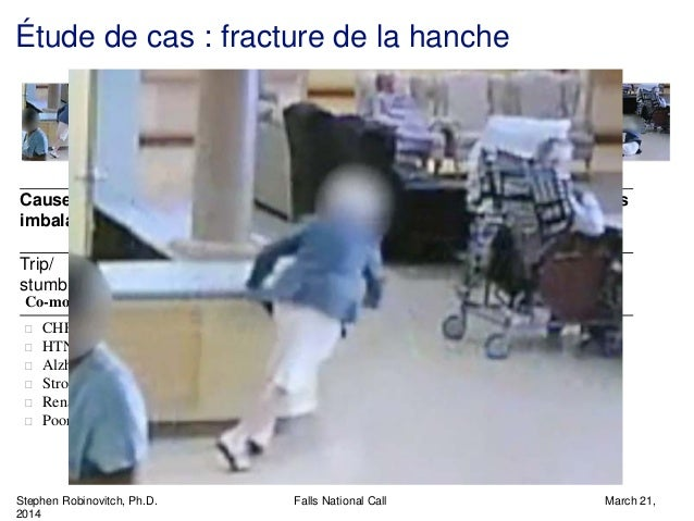 Stephen Robinovitch, Ph.D. Falls National Call March 21, 2014 Étude de cas : fracture de la hanche Cause of imbalance Acti...