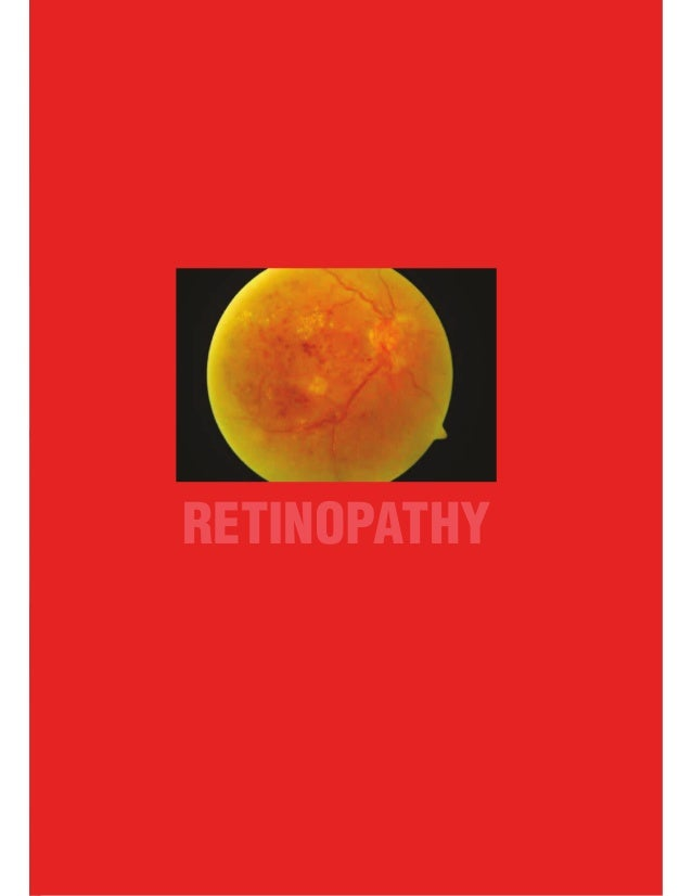 National White Paper (3rd Edition) 1 RETINOPATHY