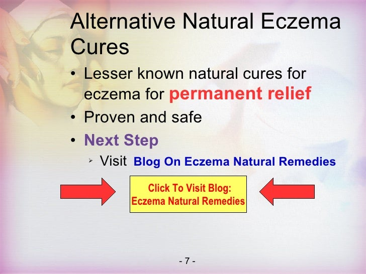 Natural Cures For Stress Rash