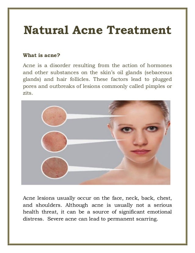 Hormonal Imbalance Acne Natural Remedies
