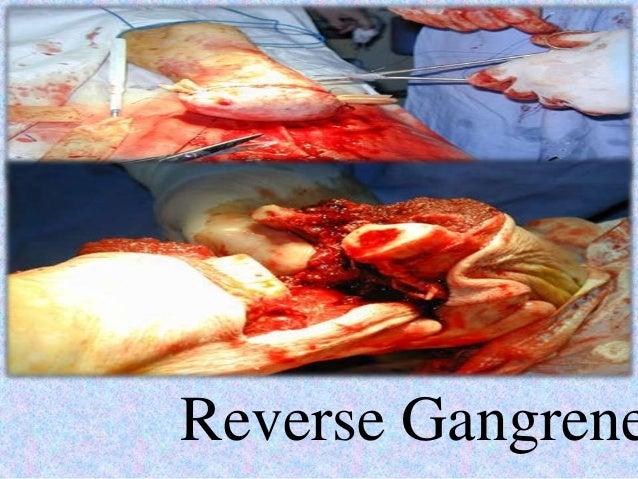 Reverse gangrene clear g formula