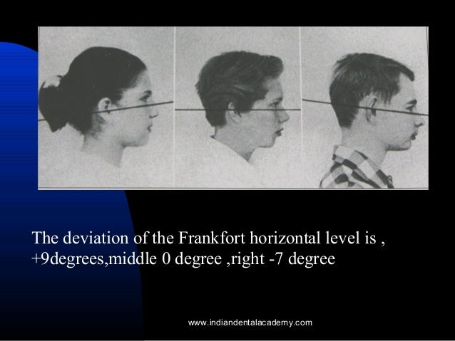 [Image: natural-head-posture-certified-fixed-ort...1408928108]