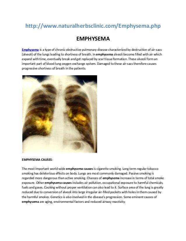http://www.naturalherbsclinic.com/Emphysema.php EMPHYSEMA Emphysema is a type of chronic obstructive pulmonary disease cha...