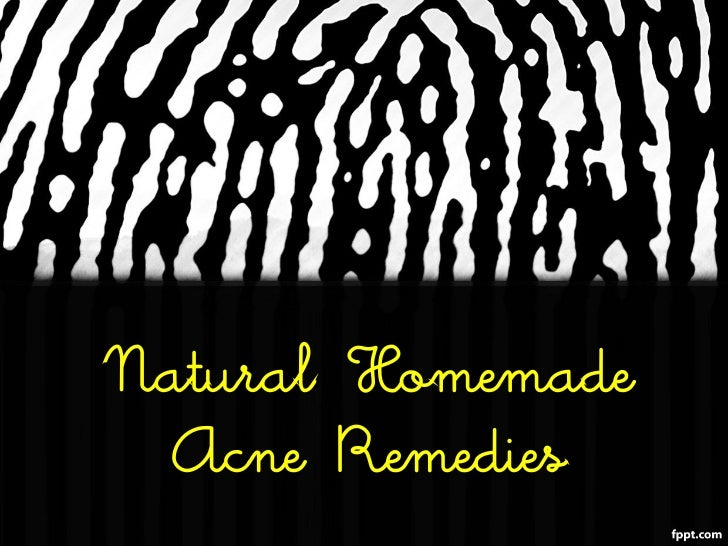 Natural Homemade Acne Remedies