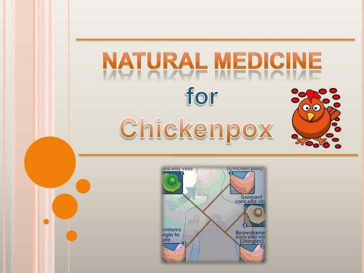 chicken pox medical term