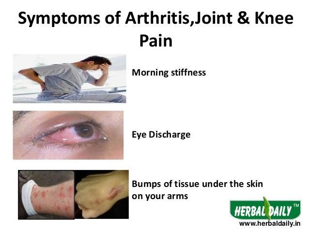 Natural Treatment For Arthiritis