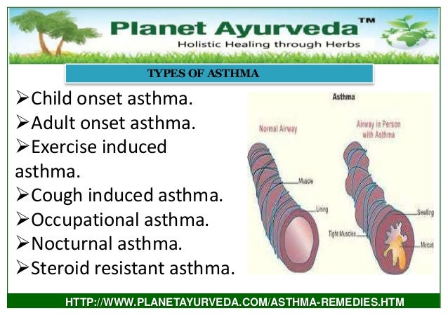 Natural Remedies For Exercise Induced Asthma