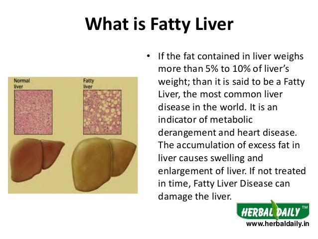 Natural Treatment for Fatty Liver in Hindi Iफैटी लीवर के ...