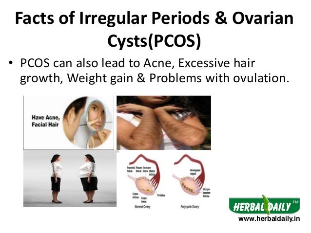 Pcos Symptoms And Natural Treatment