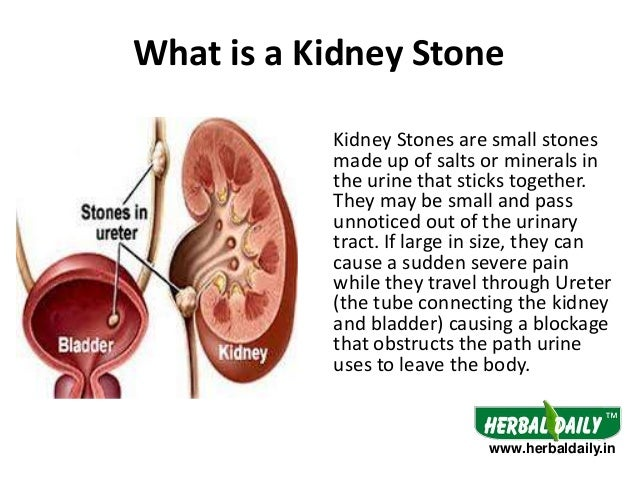 Body diagram kidney stone path electrical work wiring diagram body diagram kidney stone path images gallery ccuart Images