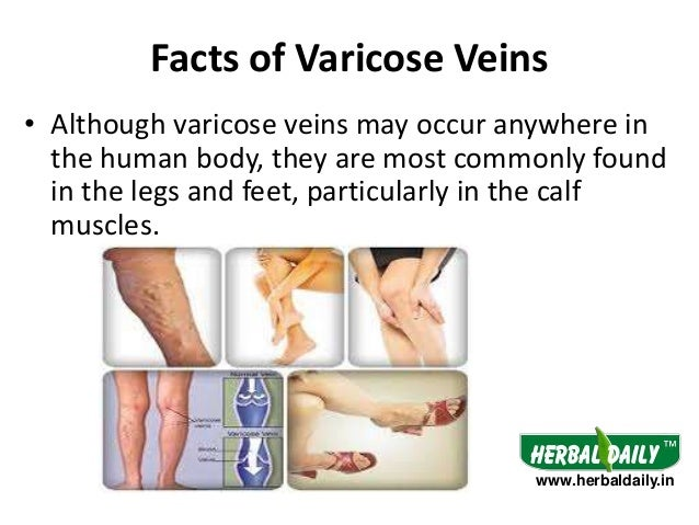 natural treatment for varicose veins in legs
