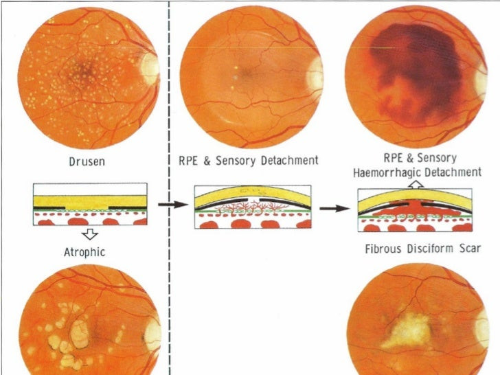 Vitreous hemorrhage  definition of vitreous hemorrhage by