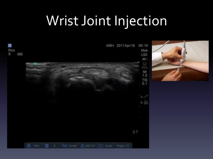 Ultrasound Guided Injections Upper Extremity