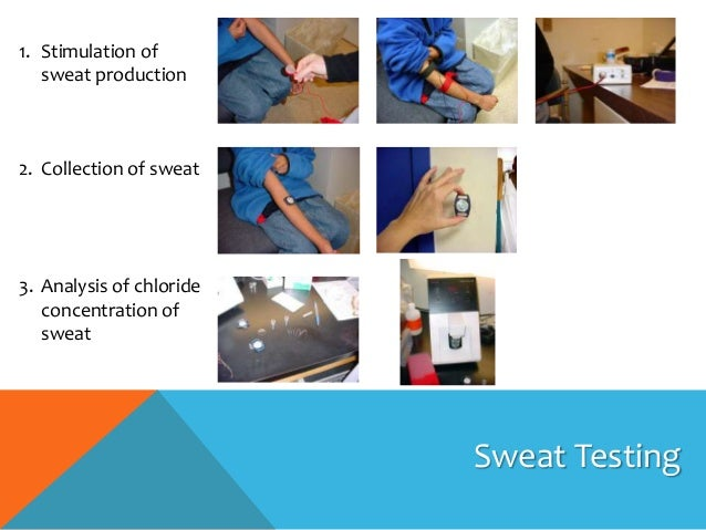 cystic fibrosis sweat test guidelines