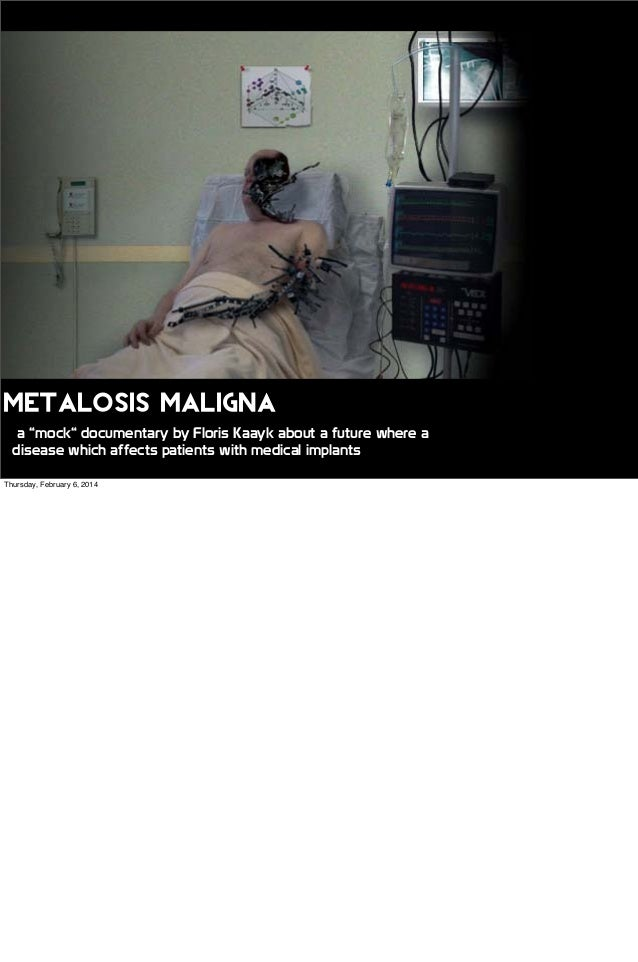 """Metalosis Maligna a """"mock"""" documentary by Floris Kaayk about a future where a disease which affects patients with medical ..."""