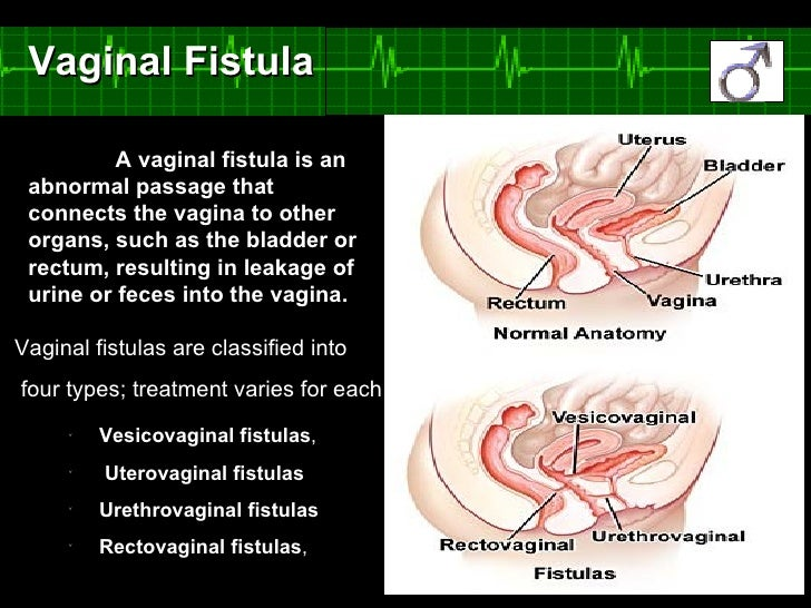 Image result for types of Vaginal fistula