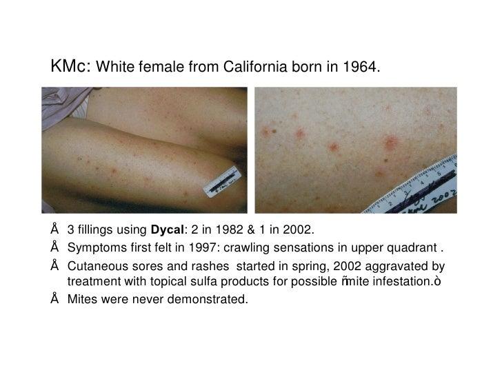 morgellons nuero cutaneous syndrome disease treatment