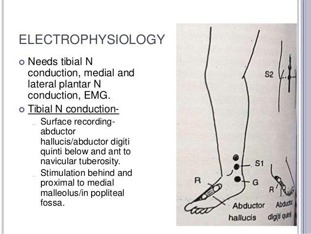 Nerve Conduction Studies- Lower Leg