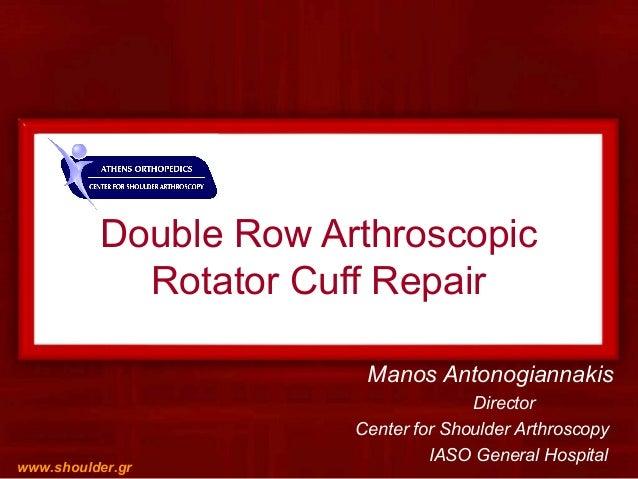Double Row Arthroscopic Rotator Cuff Repair Manos Antonogiannakis Director Center for Shoulder Arthroscopy IASO General Ho...