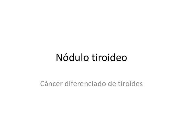 Nódulo tiroideoCáncer diferenciado de tiroides