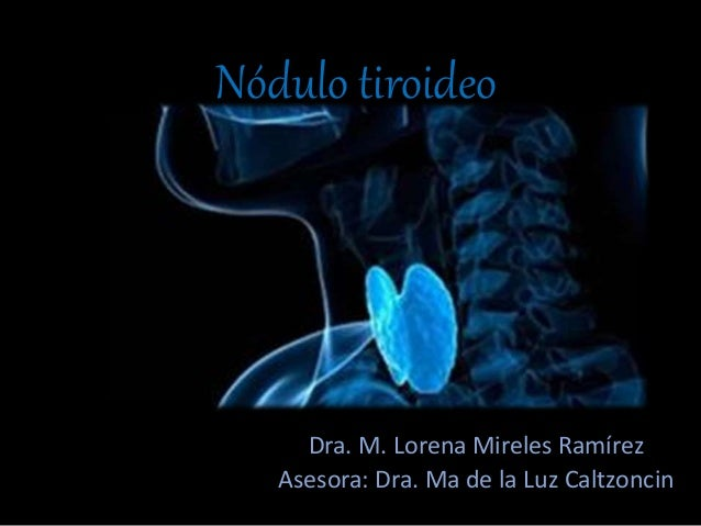 Nódulo tiroideo Dra. M. Lorena Mireles Ramírez Asesora: Dra. Ma de la Luz Caltzoncin