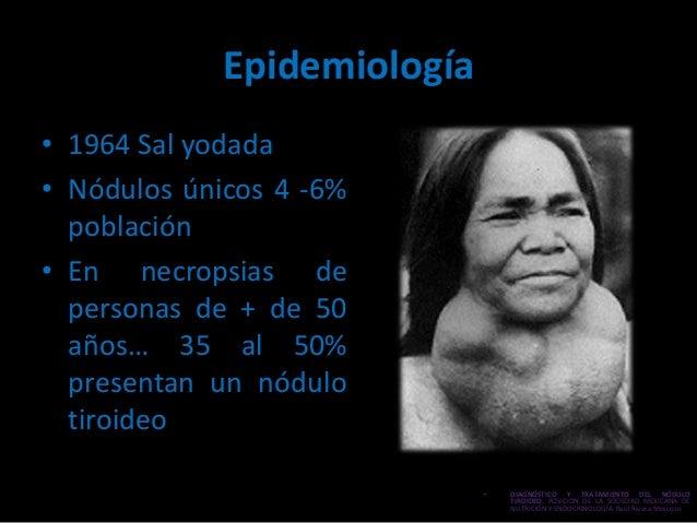 Nódulo tiroideo Slide 3