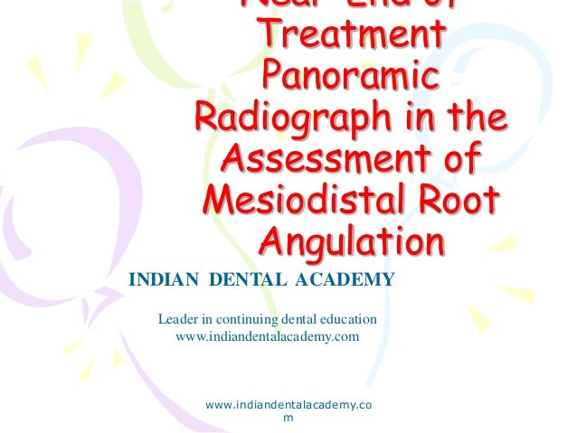 Near-End of Treatment Panoramic Radiograph in the Assessment of Mesiodistal Root Angulation www.indiandentalacademy.co m I...