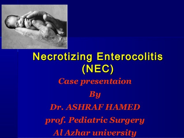 Necrotizing Enterocolitis         (NEC)    Case presentaion            By   Dr. ASHRAF HAMED  prof. Pediatric Surgery   Al...