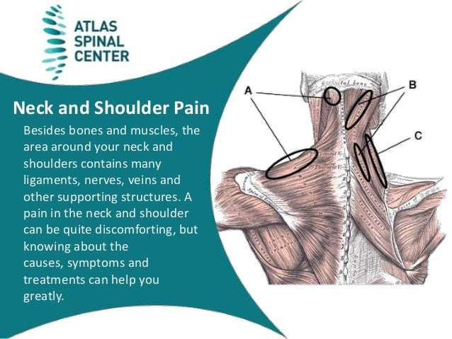 Shoulder Neck Pain Diagram - Radio Wiring Diagram •