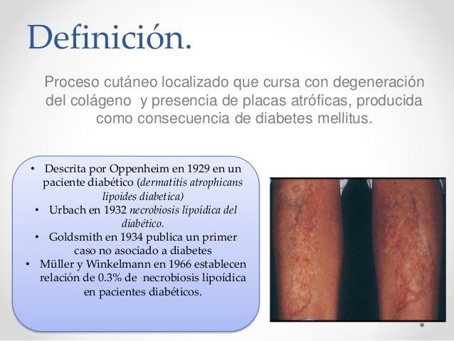 Definición de neuropatia diabetica