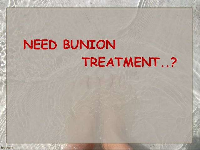 NEED BUNION TREATMENT..?