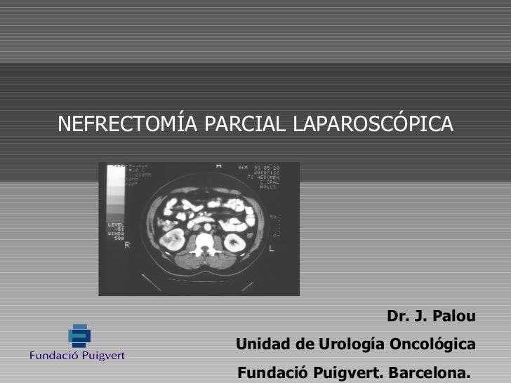 Dr. J. Palou Unidad de Urología Oncológica Fundació Puigvert. Barcelona.  NEFRECTOMÍA PARCIAL LAPAROSCÓPICA