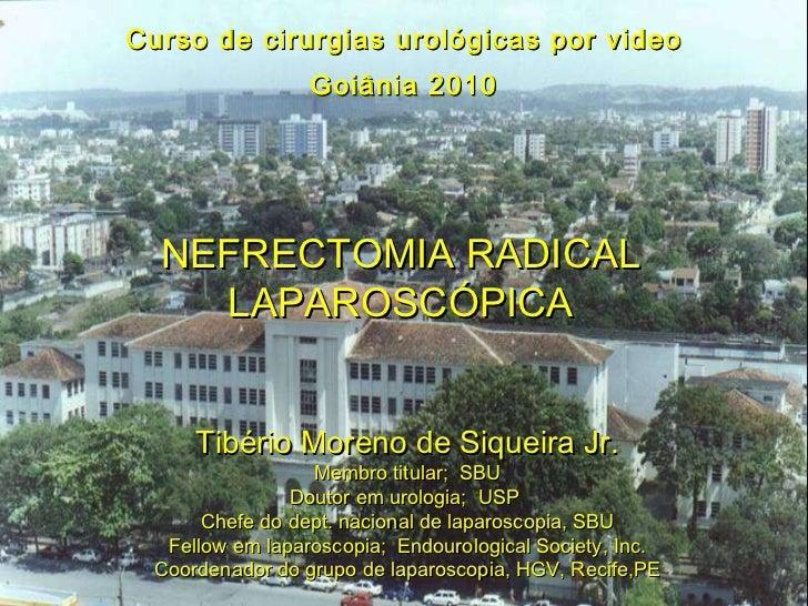 Curso de cirurgias urológicas por video Goiânia 2010 NEFRECTOMIA RADICAL LAPAROSCÓPICA Tibério Moreno de Siqueira Jr. Memb...
