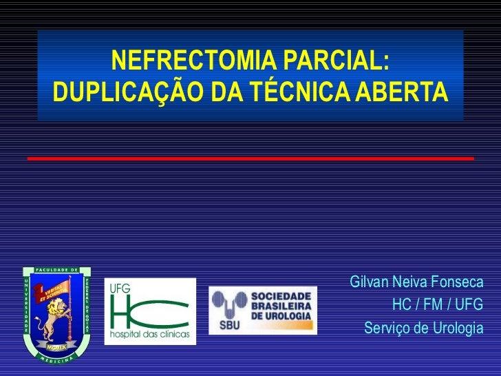 NEFRECTOMIA PARCIAL: DUPLICAÇÃO DA TÉCNICA ABERTA Gilvan Neiva Fonseca HC / FM / UFG Serviço de Urologia
