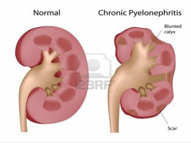  Nefritele interstitiale acute sunt legatede absorbţia unor toxine sau sunt provocate dereacţii alergice îndeosebi aleanu...
