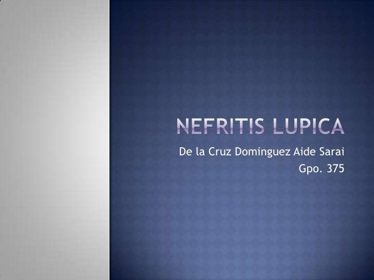 NEFRITIS LUPICA<br />De la Cruz Dominguez Aide Sarai<br />Gpo. 375<br />