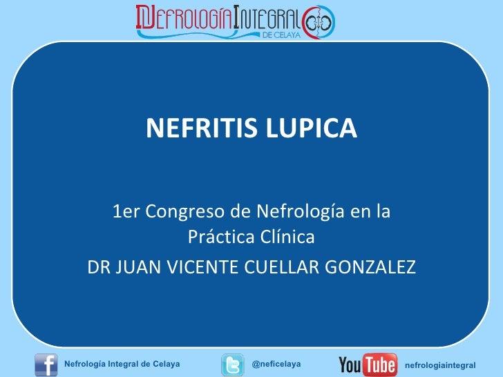 NEFRITIS LUPICA 1er Congreso de Nefrología en la Práctica Clínica DR JUAN VICENTE CUELLAR GONZALEZ Nefrología Integral de ...