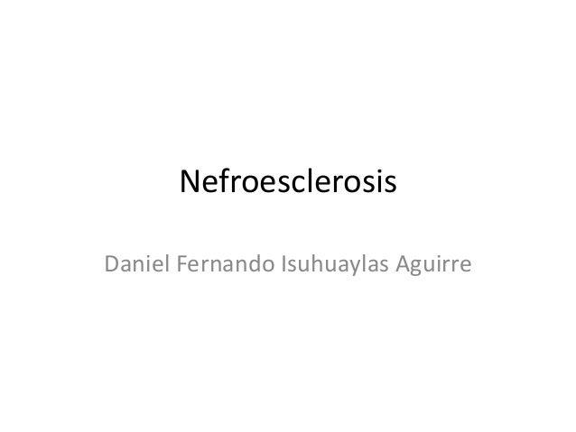 Nefroesclerosis Daniel Fernando Isuhuaylas Aguirre